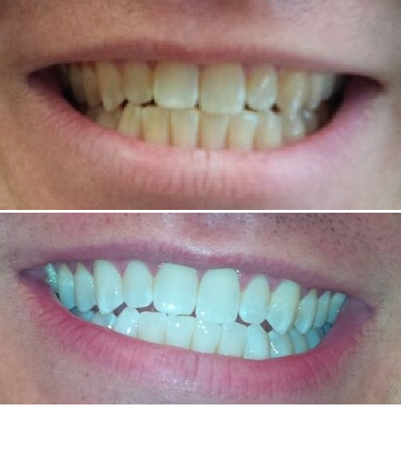 Before and after comparison of my teeth from using the Philips Zoom DayWhite system