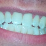 After-picture of my new smile. Lighting may exaggerate the extent of the improvement