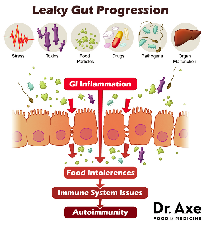 Leaky Gut Progression Graphic (image source)